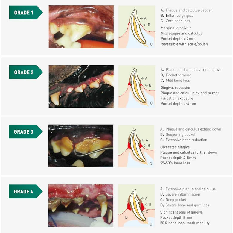 Grades of periodontal infographic